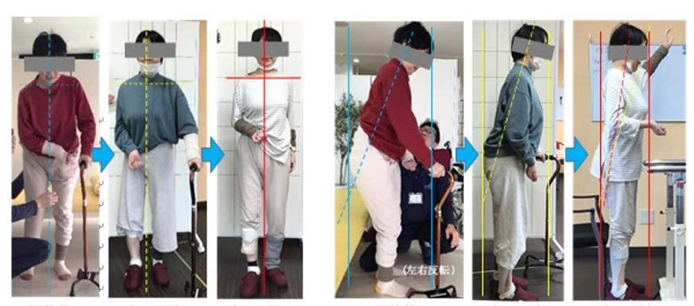 立位姿勢の改善の比較