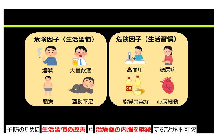脳血管疾患(脳卒中)の危険因子をイラストで示した図