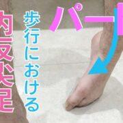 歩行における内反尖足
